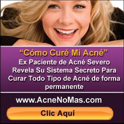 curar el acné